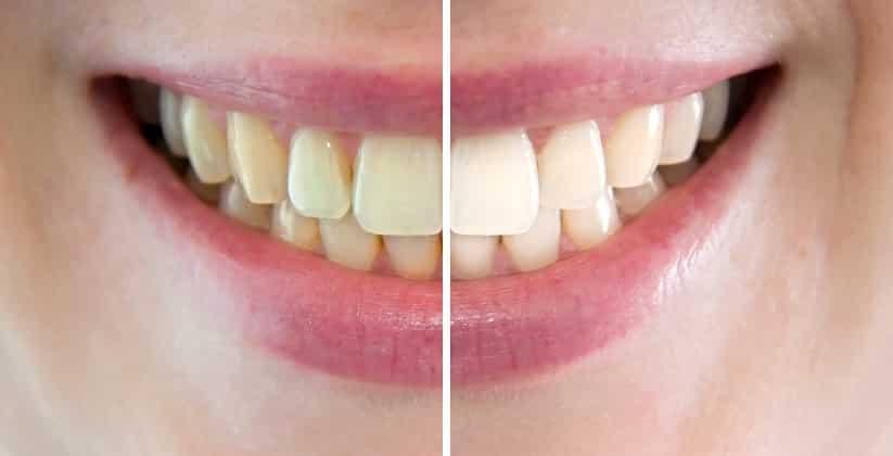 CMD + I Centre de Médecine Dentaire et d'Implantologie, Dr Rossier